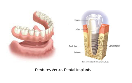 A side by side image of bottom dentures next to an illustration of a dental implant