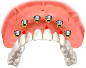 Image of Implant Overdentures