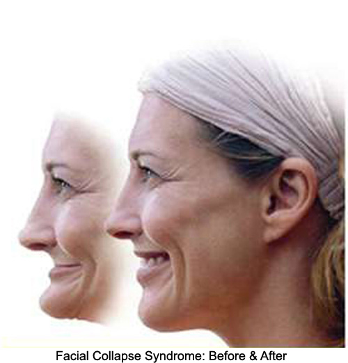 Before and after images about facial collapse