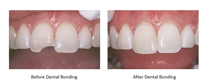 A chipped tooth before and after dental bonding