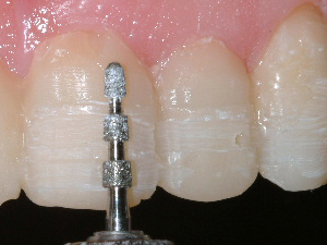 Tooth being prepped for porcelainv