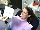 Baton Rouge Zoom whitening - step four