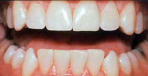After - Baton Rouge teeth whitening