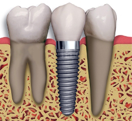 Baton Rouge Dental Implants