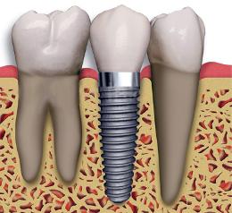 Baton Rouge Dental Implants