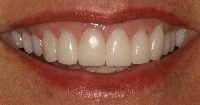Baton Rouge porcelain crowns - after
