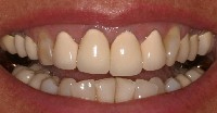 Baton Rouge porcelain crowns - before