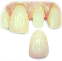 Baton Rouge porcelain crowns
