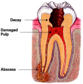 Baton Rouge root canal treatment